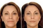 Использование лазера в косметологии